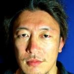 【Interview】川尻達也 〈02〉「不安はあるけど、やっぱり好きなんで。やりたいから、手術も受けた」