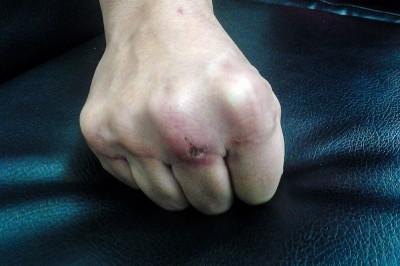 【写真】パウンド練習後のしなしの拳(C)TURTLEPOND