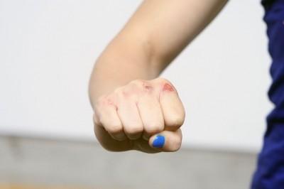 【写真】しなしの右の拳。しっかりとマニキュアがされているが、拳頭部分が擦り剝けている。これはイ・イェジ戦を見据えているだけの傷ではないだろう(C) TURTLE SPRING