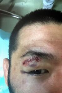 Fukuda injury