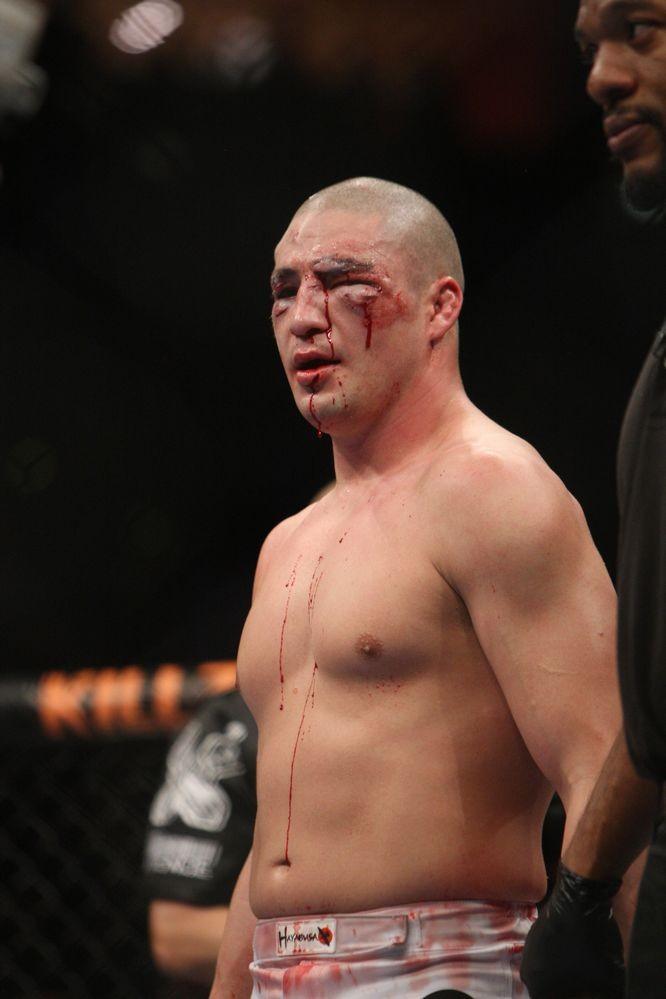 UFC Fuel01】ディエゴ「王座挑戦...